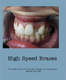 View High Speed Braces by Michael Zuk DDS